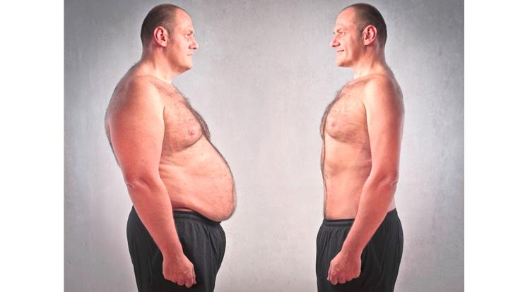 obesidad_nutricion2