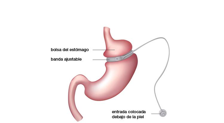 obesidad_técnica1
